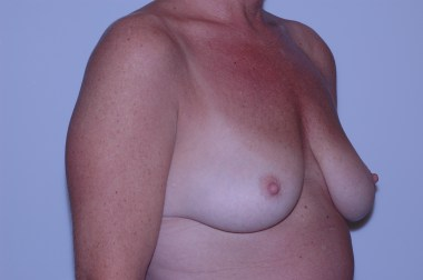 breast aug,oblique,before 5
