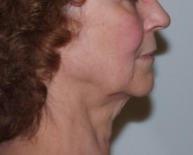 facenecklift1,side,before