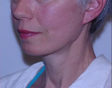 facenecklift2,oblique,after