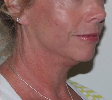 facenecklift6,oblique,after