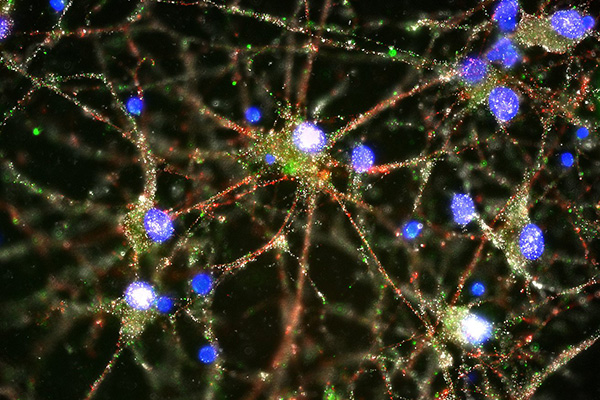 Imaging studies showed C4 (in green) located at the synapses of primary human neurons. Image: Heather de Rivera, McCarroll lab