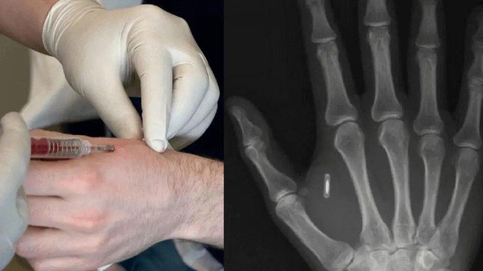 1984 is een grap tegen deze totale bewaking: chip-implantaten zouden ons leven moeten bepalen