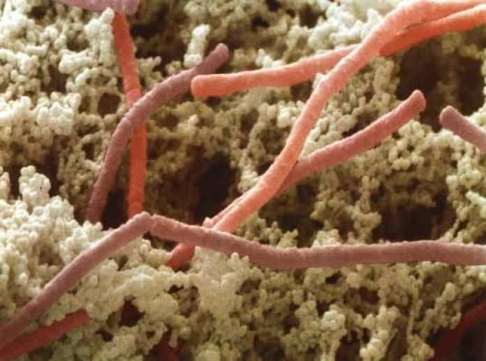 lactobacillus-bulgaricus-bacteria-power-and-syred