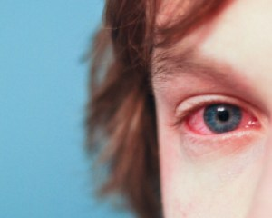 mold-itchy-red-eyes