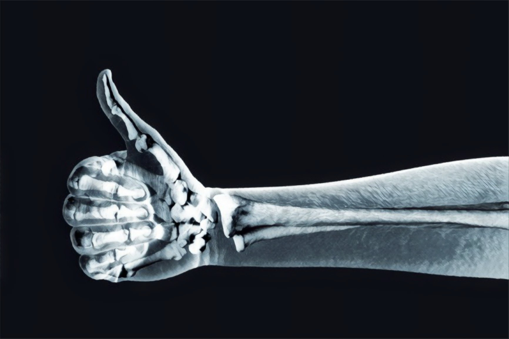 Drug-coated bone implants may help tackle post-surgery infections & bacteria