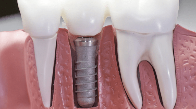IIT-D & MAIDS scientists develop indigenous tech for user-friendly, affordable tooth implants