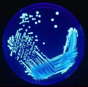 Legionella_Plate_01