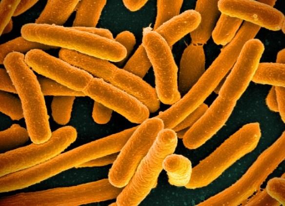A colorized scanning electron micrograph of E. Coli bacteria.