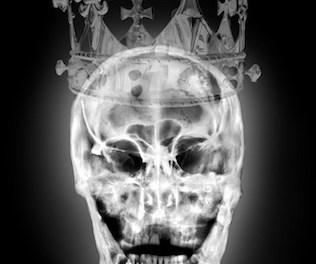 Artist X-ray Portraits of Richard III's Skull Bring the Plantagenet King to Life