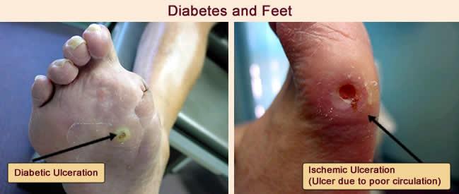 Diabetic Foot Problems Diabetes
