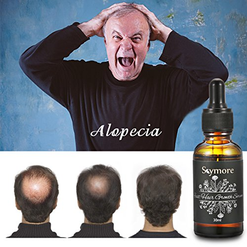 Skymore 30ml Fast Hair Growth Serum, Anti-Hair Loss, Hair Thinning Treatment SKYMORE anti-hair loss serum, nonetheless, lets you deal with it!