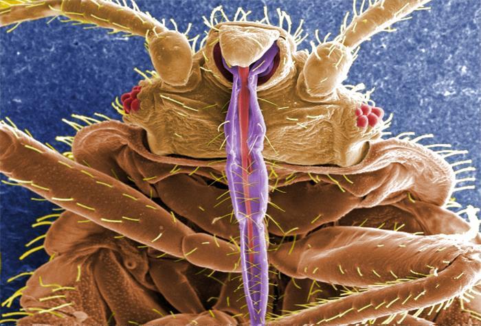 CDC Bedbug microscope