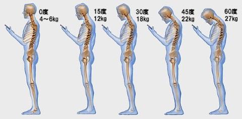 若者に急増中の首こり・肩こり解消法|静岡市のカイロプラクティック施術整体