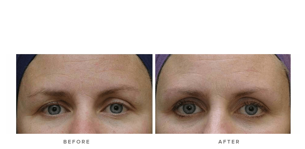 Thermage Eye Before and After Images   Infinity Skin Clinic