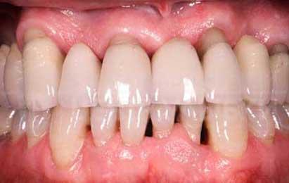 acupuntura-y-periodontitis