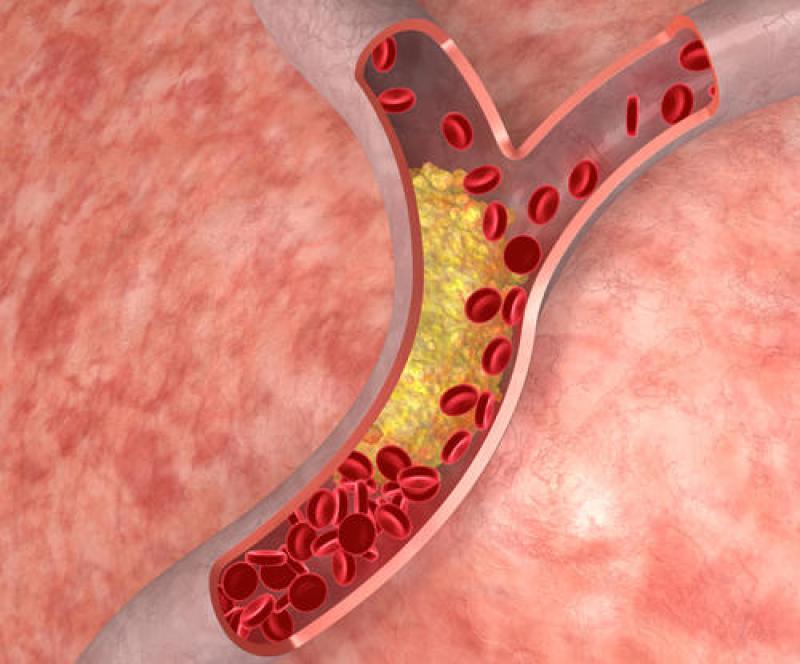 cholestrol-in-artery
