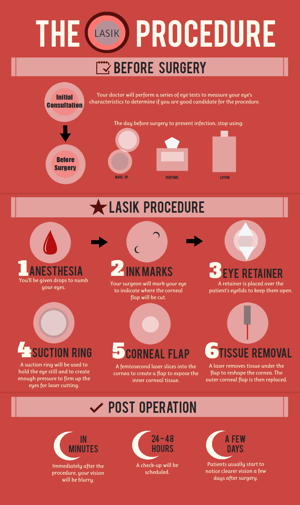 lasik-procedure_50cfa073e4d3d