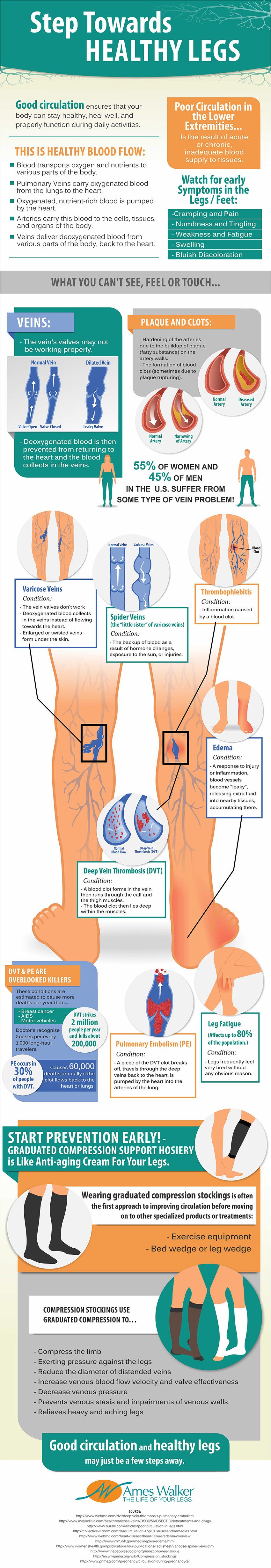 step-towards-healthy-legs_525ea702d07fe