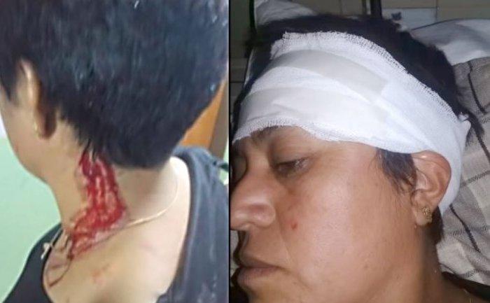 Esta semana acusarán al hombre que atacó a su ex pareja en Picún Leufú