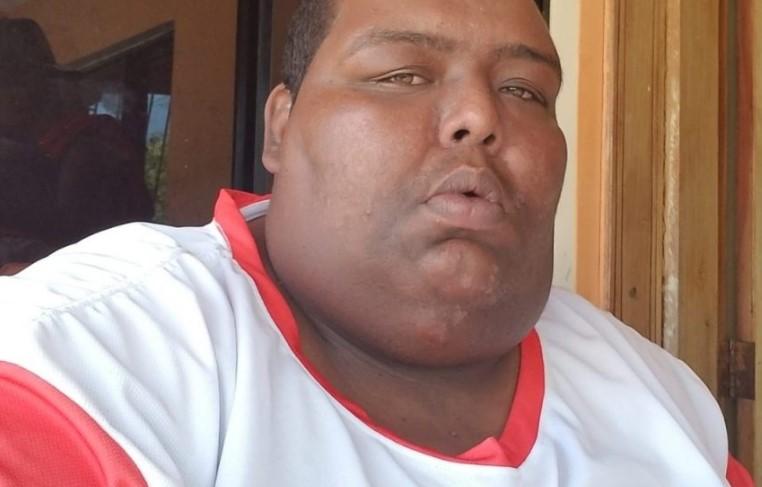 """""""La Verdolaga"""" es hospitalizado tras presentar inconvenientes de salud"""