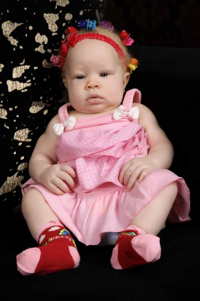 Mother Of Albino Children Shares 7 Years Emotional Experience