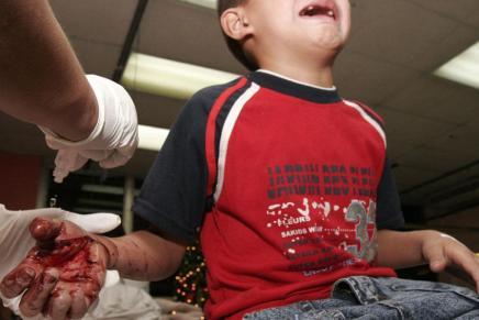 """Registran al primer niño lesionado por pirotecnia de la temporada, le explota """"cuete"""" en la mano"""