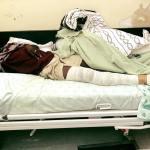 Assault victim registers case against police