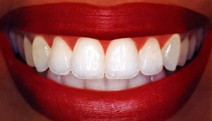 make your teeth super white