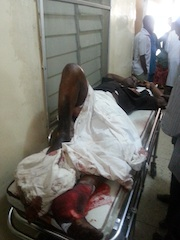 an-injured-victim-of-Kano-blast