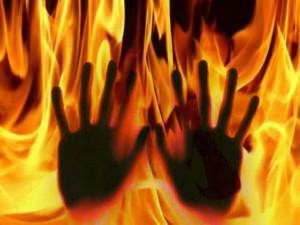 burnt-alive