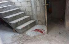 Cae de escaleras y se lesiona