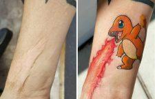 #GALERÍA || Tatuadores cubren y combinan cicatrices o marcas de nacimiento con increíbles tatuajes