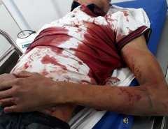 Adolescente de 17 anos morre em confronto com a polícia