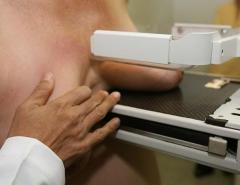 UFRN abre inscrições para mutirão de mamografias