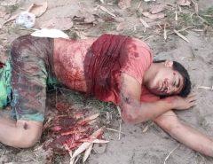 Atenção Imagens Fortes: Mesmo baleado Sargento Heronides conseguiu balear os dois bandidos