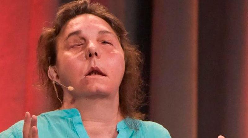 Su trasplante de rostro está fallando –