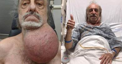 Le extrajeron un tumor del tamaño de una pelota de fútbol del cuello
