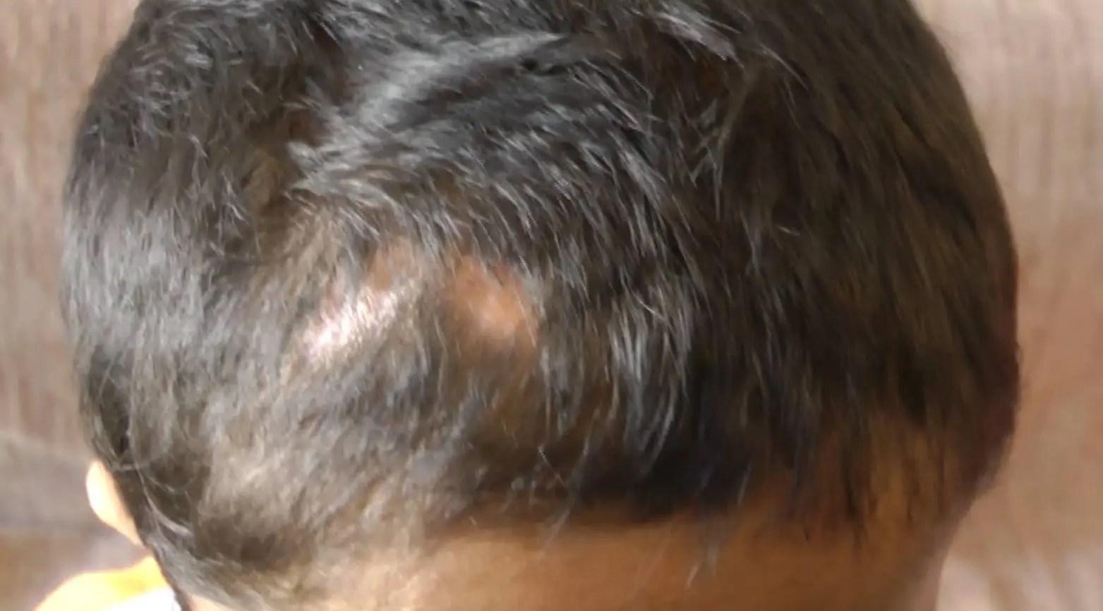 Vogëlushi 7- vjeçar vuan nga tumori në kokë, nëna thirrje për ndihmë.