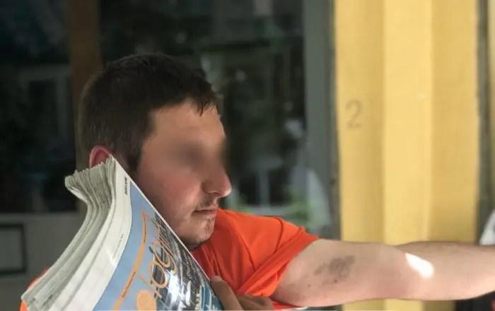 Tjetër rast dhune në komisariat, 28-vjeçari: Policët më mbajtën 9 orë