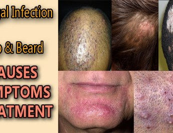 fungal infection on scalp and beard