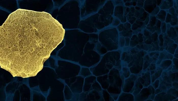 celulas madres esclerosis múltiple