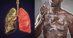 Вред курения: как его снизить. Способы, уменьшающие последствия