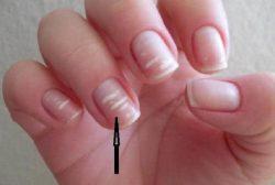 Белые полоски на ногтях: Что означают, причины появления и способы лечения
