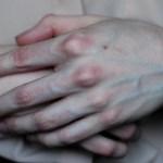 Руки постоянно холодные: почему? Причины и факторы, которые влияют на терморегуляцию конечностей