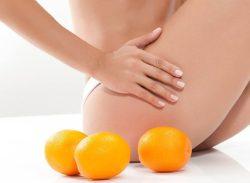 Почему появляется целлюлит: причины, появления «апельсиновой корки» на бедрах и ягодицах