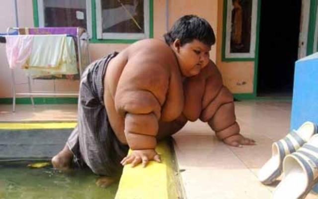 Бывший самый толстый ребенок в мире
