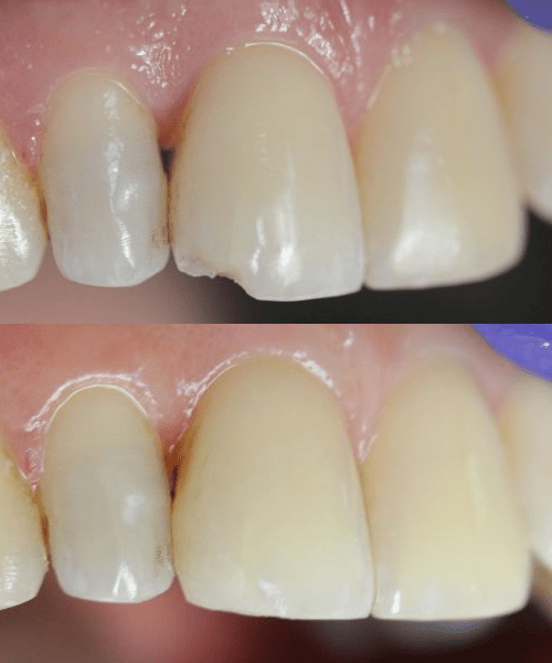 Chipped Front Tooth Repair Ingleside Dental