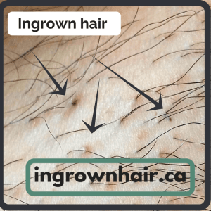 Ingrown hairs can be a pain and look terrible