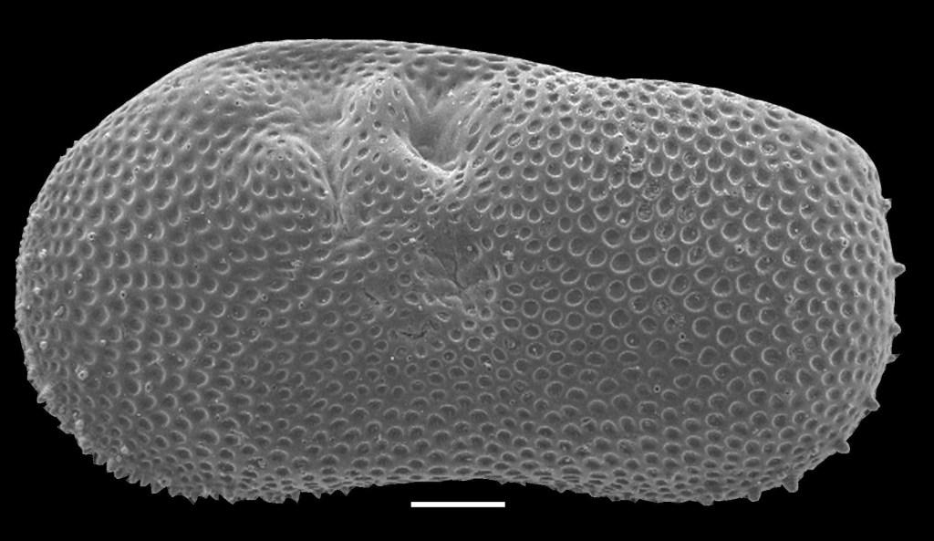 ostracode Ilyocypris gibba prelevata dai sedimenti del lago di Castiglione