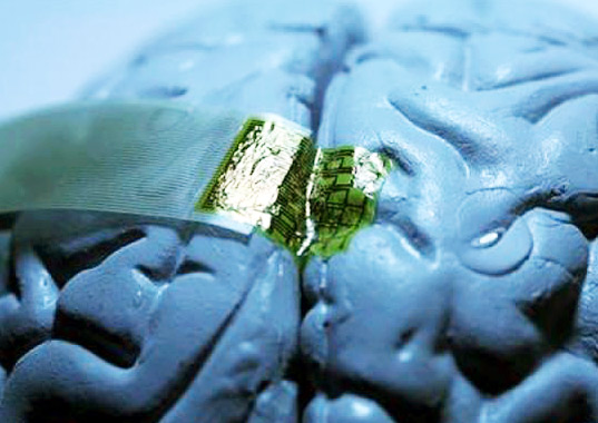 human brain, brain implant, silk, epilepsy, health, green design, design for health, sustainable design